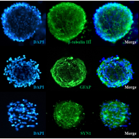 Human Cortical Spheroids at Day 7